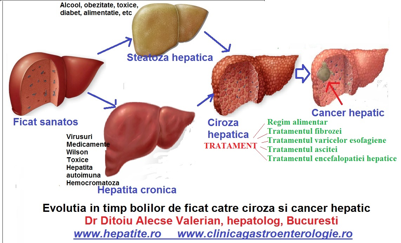 Hepatita C: Simptome, transmitere, complicatii si tratament
