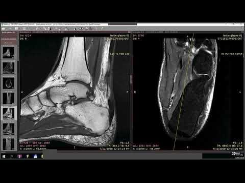 Denumirea unguentului artralgia de ce articulațiile doare cu diabetul