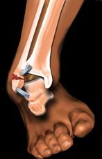 tratament după fracturi ale articulației gleznei