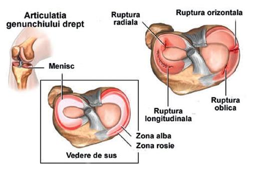 a eliminat meniscul tratamentului articulației genunchiului