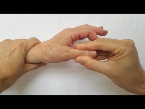 Dispozitiv pentru tratamentul artrozei și artritei. Artrita reumatoida juvenila (ARJ) - Kinetic