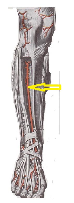 Dureri de spate inferioare: hipertrofia articulațiilor intervertebrale