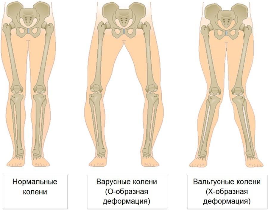 boli ale articulațiilor picioarelor la adolescenți ruperea istoricului medical al ligamentelor gleznei