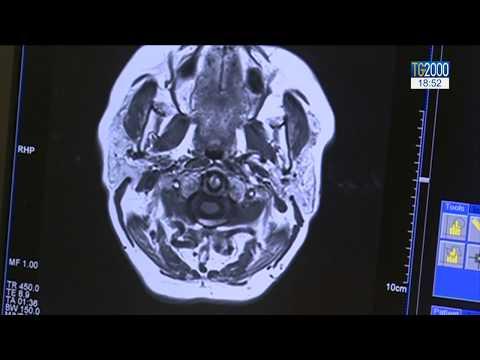 cum se tratează osteoartroza deformantă a articulației gleznei