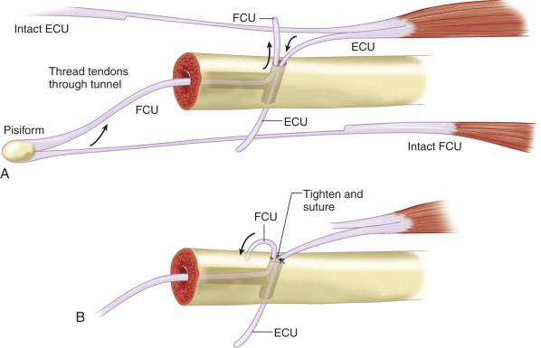 Cum să îndepărtați umflarea articulației periei