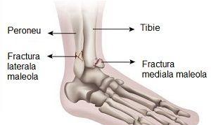 artrita tibiei cum se tratează