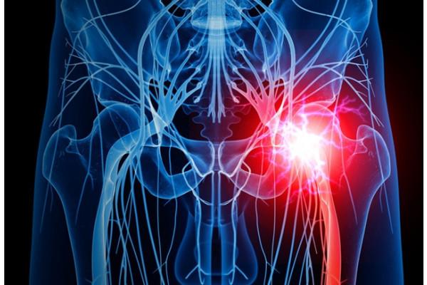 Masajul terapeutic pentru durerea de șold