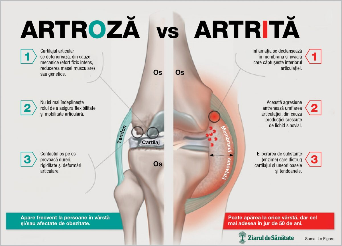 Articulațiile doare cu anemie? durere de șold ce este