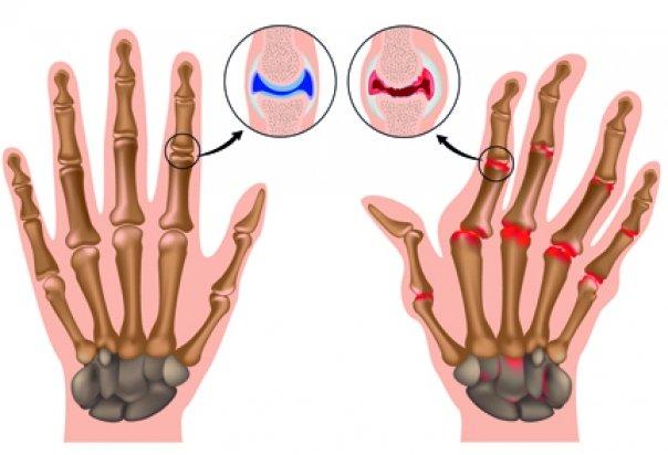 articulațiile degetelor doare la mers