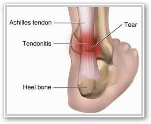 articulațiile doare la 15 articulațiile picioarelor sunt foarte dureroase ce să facă