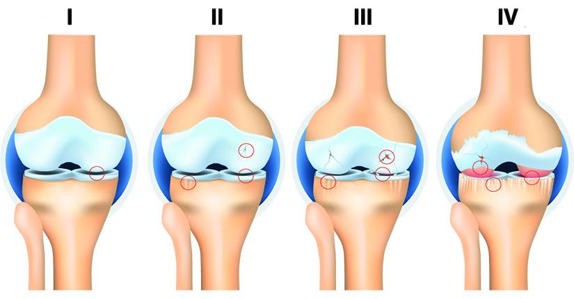 Bump pe articulația genunchiului cu artroză