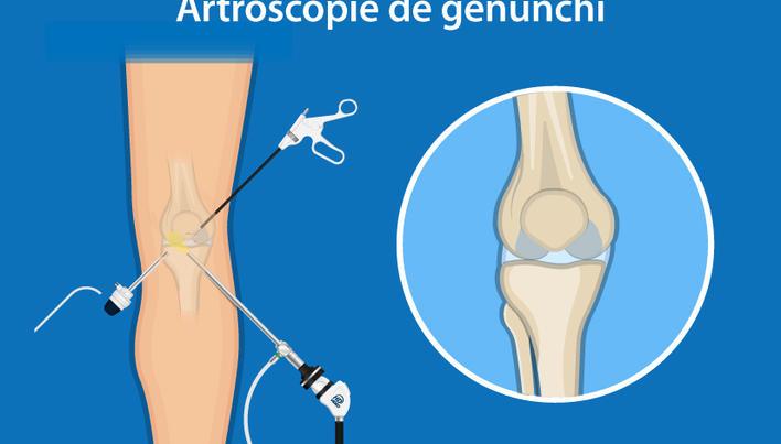 GENUNCHI - menisc, deteriorarea cartilagiilor   Top Shop