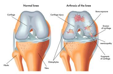 artroză încrucișată și tratament glucosamină condroitină pentru articulații