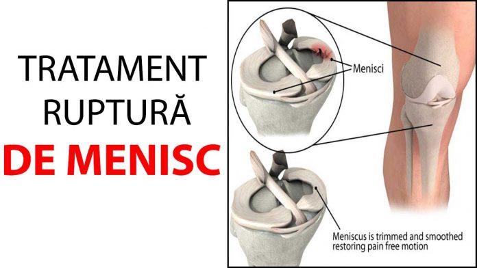 articulația pe un braț doare după dureri articulare chimice