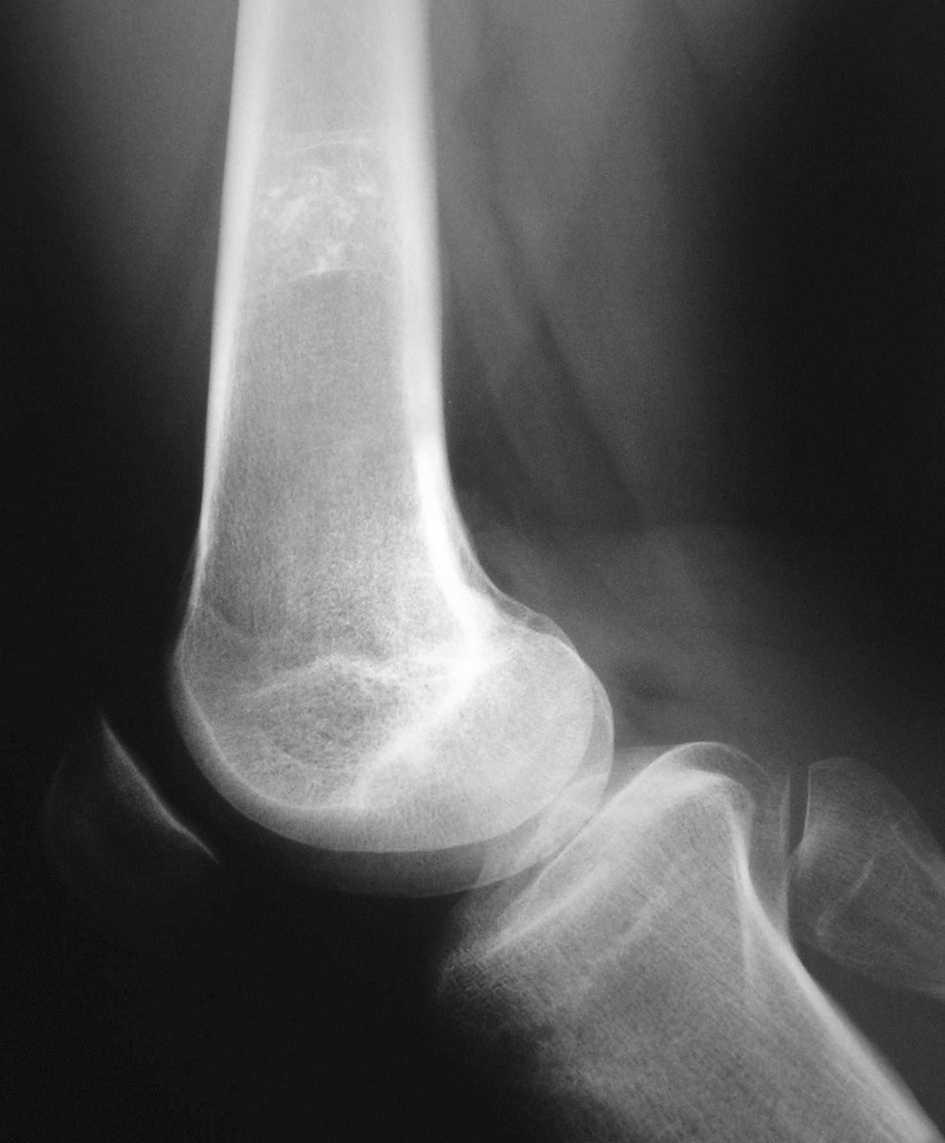 artrita atunci când rănesc articulațiile artroza de calmare a durerii genunchiului