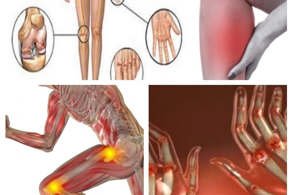 Geluri de artrită - sfantipa.ro