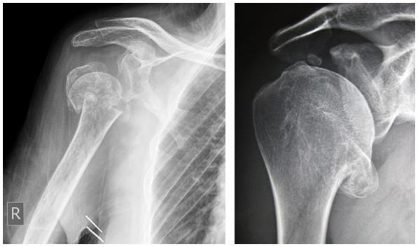 medicină artroză umăr dureri articulare și musculare în osteochondroză