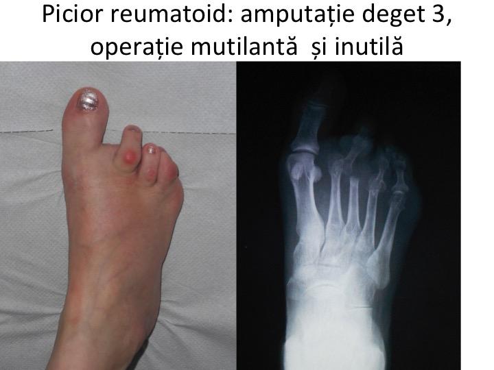Poliartrita reumatoida   sfantipa.ro