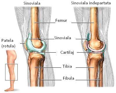 artrita sinovială a genunchiului
