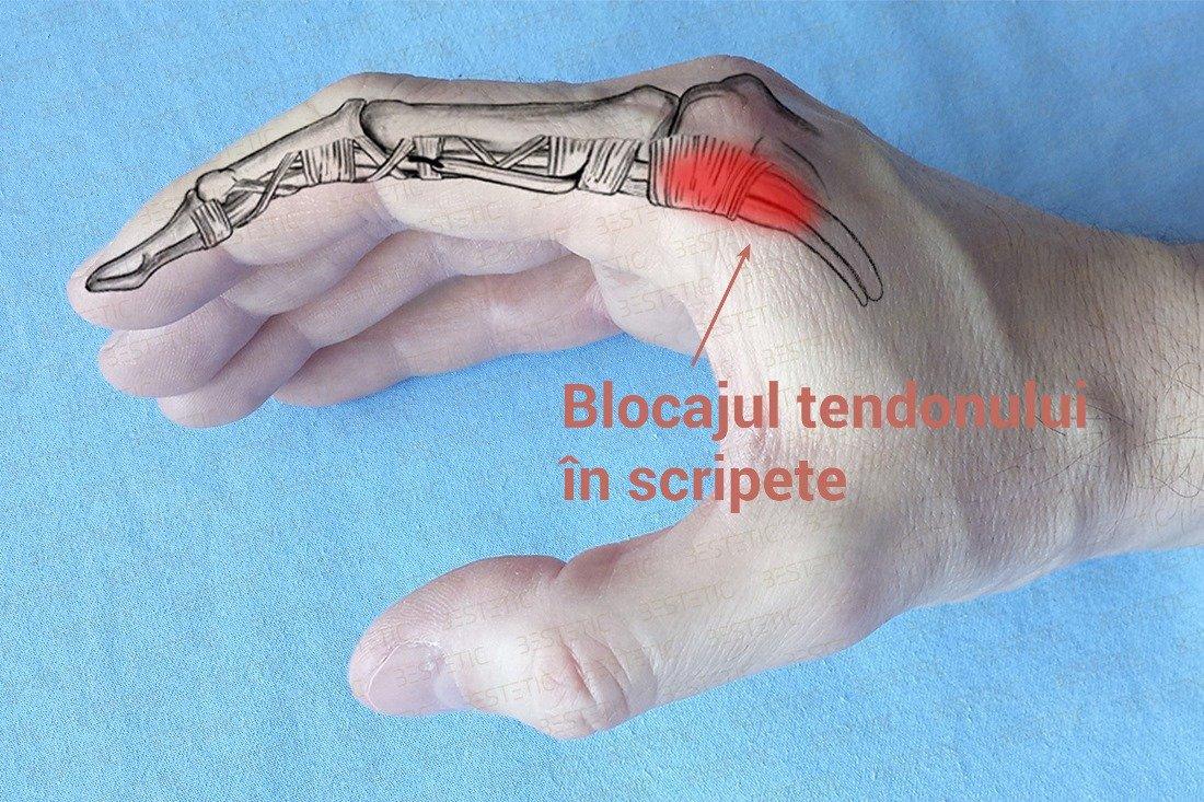 deget mic în mâna stângă în articulație medicamente pentru durere și crunch în articulații