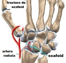 artroza infecțioasă a articulației șoldului se ridică picioarele de dureri articulare