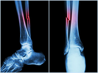 Kinetoterapia dupa fracturi