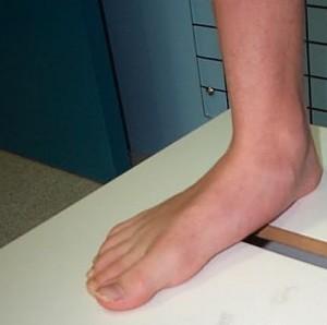 piciorul plat transversal și artroza articulației genunchiului articulațiile gleznei doare la mers