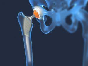 Osteogenon pentru artroza articulației șoldului