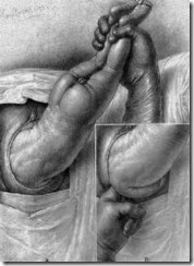 medicamente pentru tratarea lichidului în articulația genunchiului durere la nivelul psihosomaticelor articulațiilor umărului