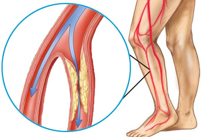 Articulația Mea De La Picioarele Cu Degetul Mare Mă Doare, dreptate degetul mare te doare la mers