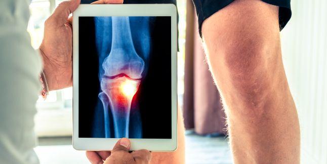 Entorsa genunchiului – o afectiune frecvent intalnita iarna