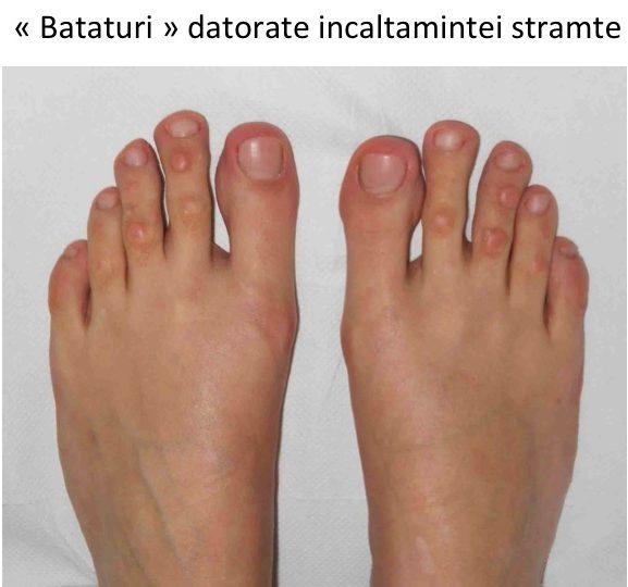 umflarea picioarelor cu boală articulară