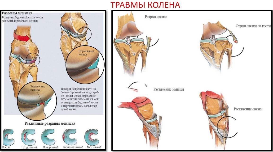 Artroza tratamentului articulației degetului index, Unguent pentru artroza degetului mare