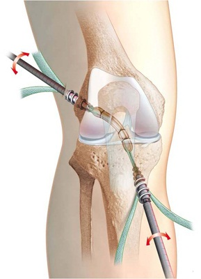 Refacerea ligamentelor sfâșiate ale articulației genunchiului, Meniscului