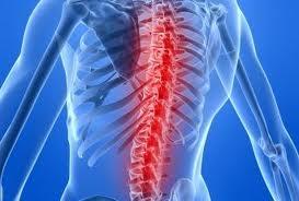tratament dureri lombare unguent de osteochondroză cu piper