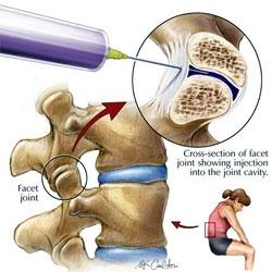 injecții pentru dureri articulare a