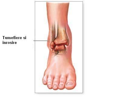 simptomele bolii gleznei tratamentul intern al durerilor de genunchi