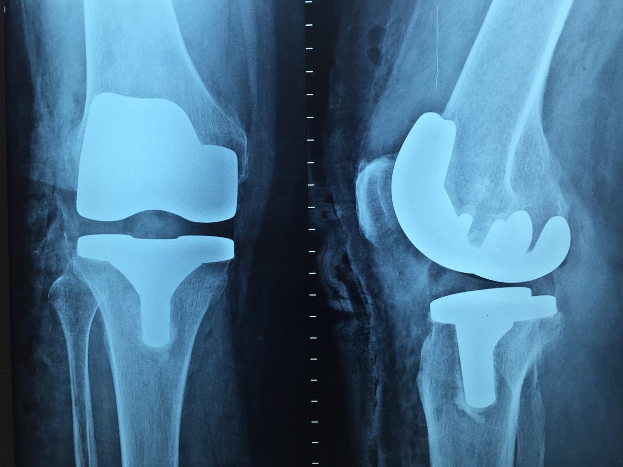 unguente pentru tratamentul articulațiilor gleznei pastile de calmare a durerii articulare