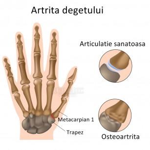 tratamentul degetelor artritei dureri la nivelul axilei stângi și a articulațiilor