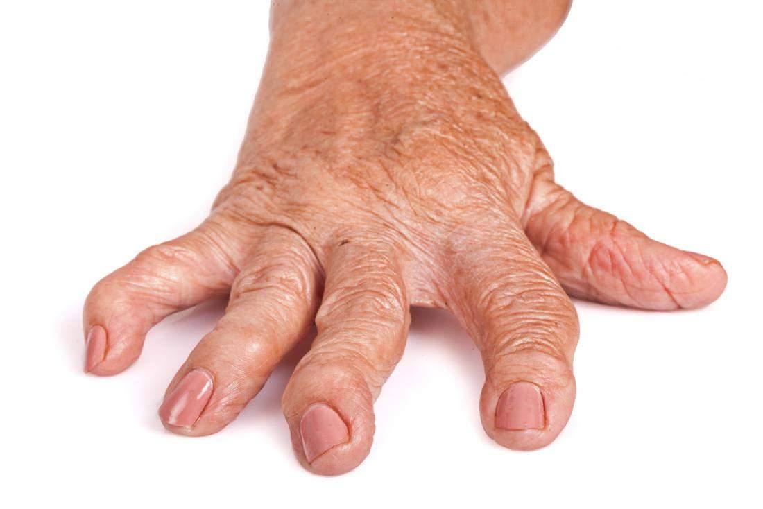 Terapia non biologica (DMARDs) in poliartrita reumatoida