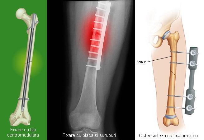 Cum poate face minuni recuperarea medicală pentru fracturi