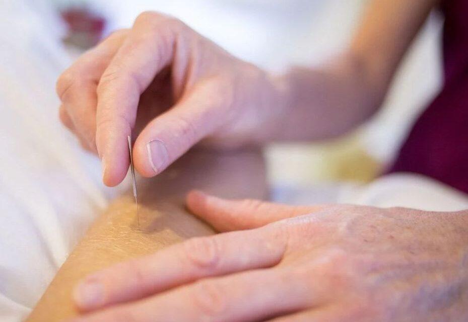 Tratarea durerilor articulare cu acupunctură