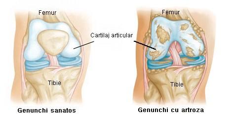 tratamentul artrozelor genunchiului în d
