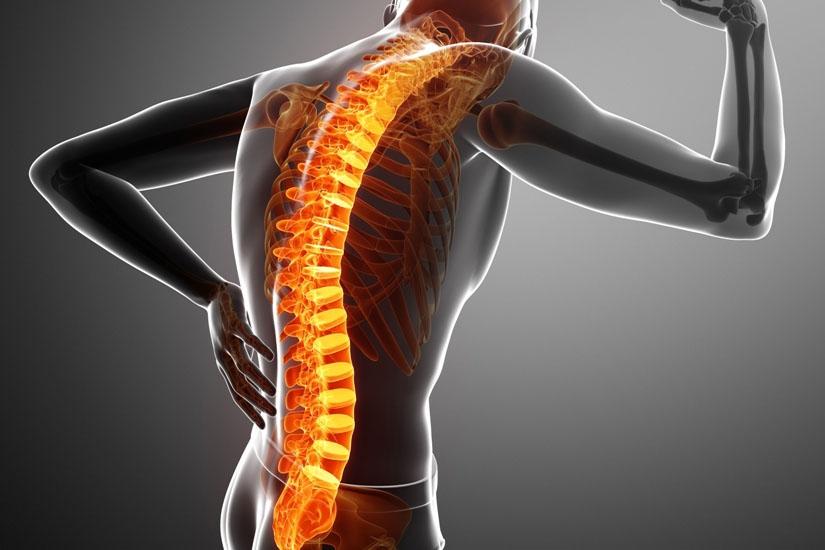 Informații despre durerea de spate