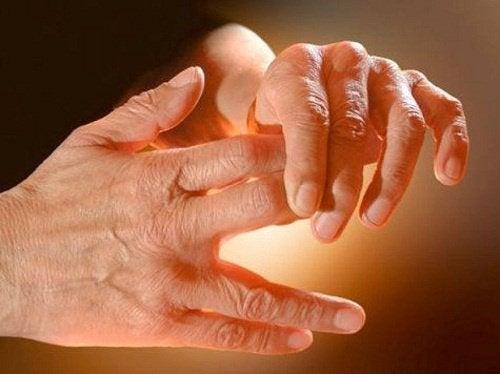 tratamentul articulației castorului articulația doare pe mâini