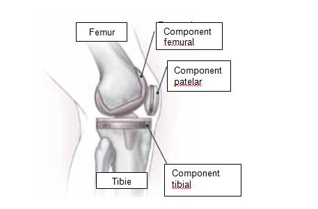 Anestezie dureri articulare genunchi