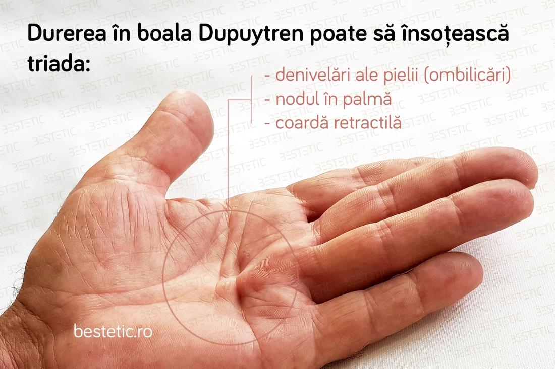 articulația din mâna dreaptă doare ce să facă
