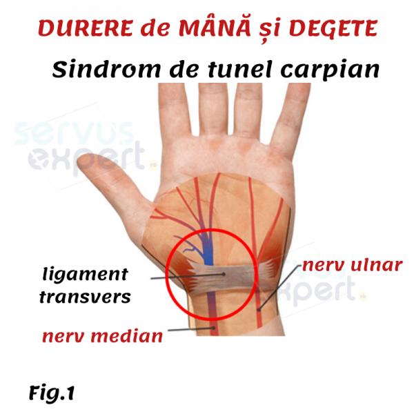 Durerea articulară în degetul mijlociu și inelul. Dureri de articulație degetul mijlociu