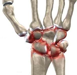 articulația pe încheietura mâinii doare ce să facă