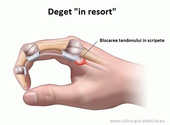Articulatia mainii degetelor